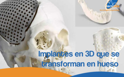 Implantes en 3D que se transforman en hueso