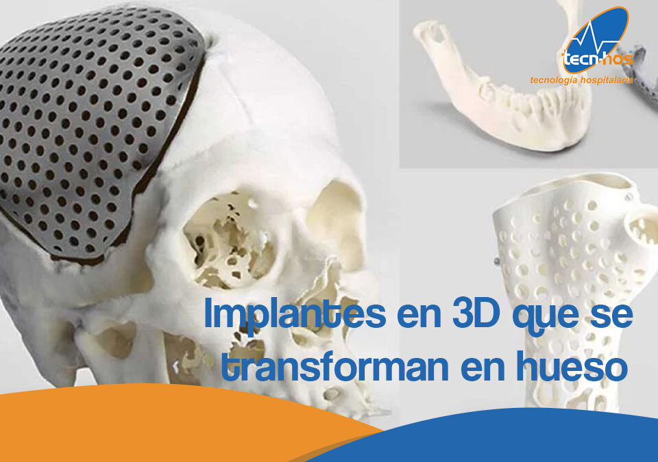 Implantes en 3D que se transforman en hueso