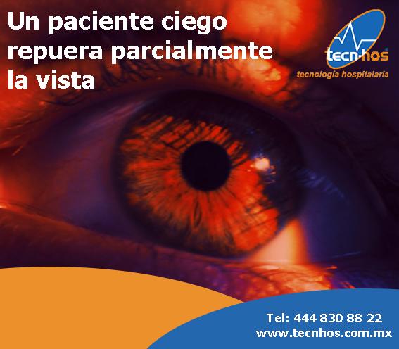 Un paciente ciego recupera la vista parcialmente con una novedosa terapia a base de algas